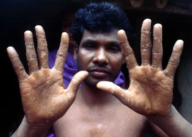 eau contaminé-bangladeshi-man-shows-wounds-on-hands-from-arsenic-in-well-water
