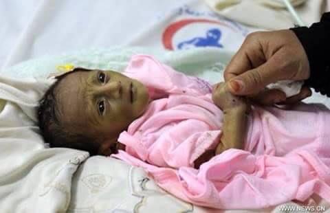 pauvre au Yémen