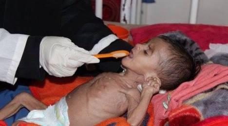 pauvre au Yémen2