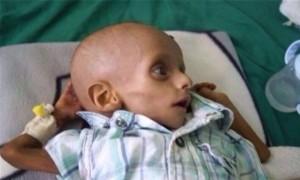 pauvre au Yémen4